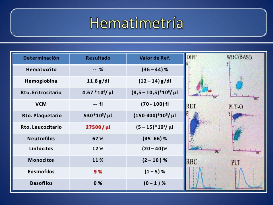 Hematimetría Determinación Resultado Valor de Ref. Hematocrito -- %