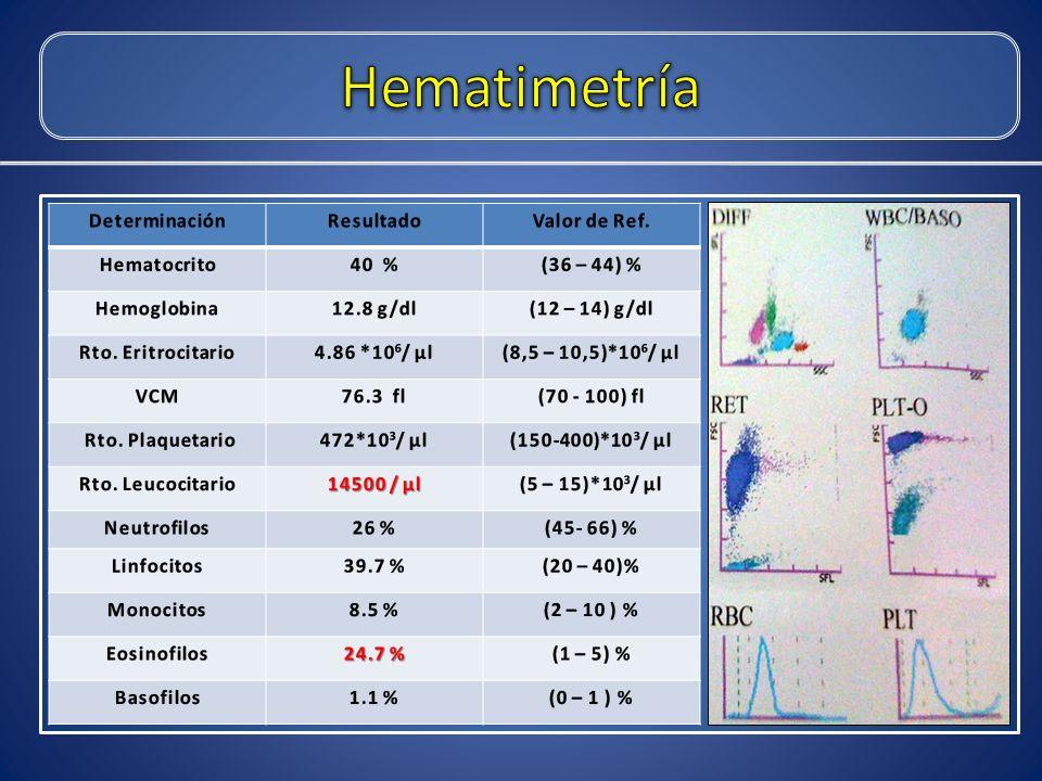 Hematimetría Determinación Resultado Valor de Ref. Hematocrito 40 %