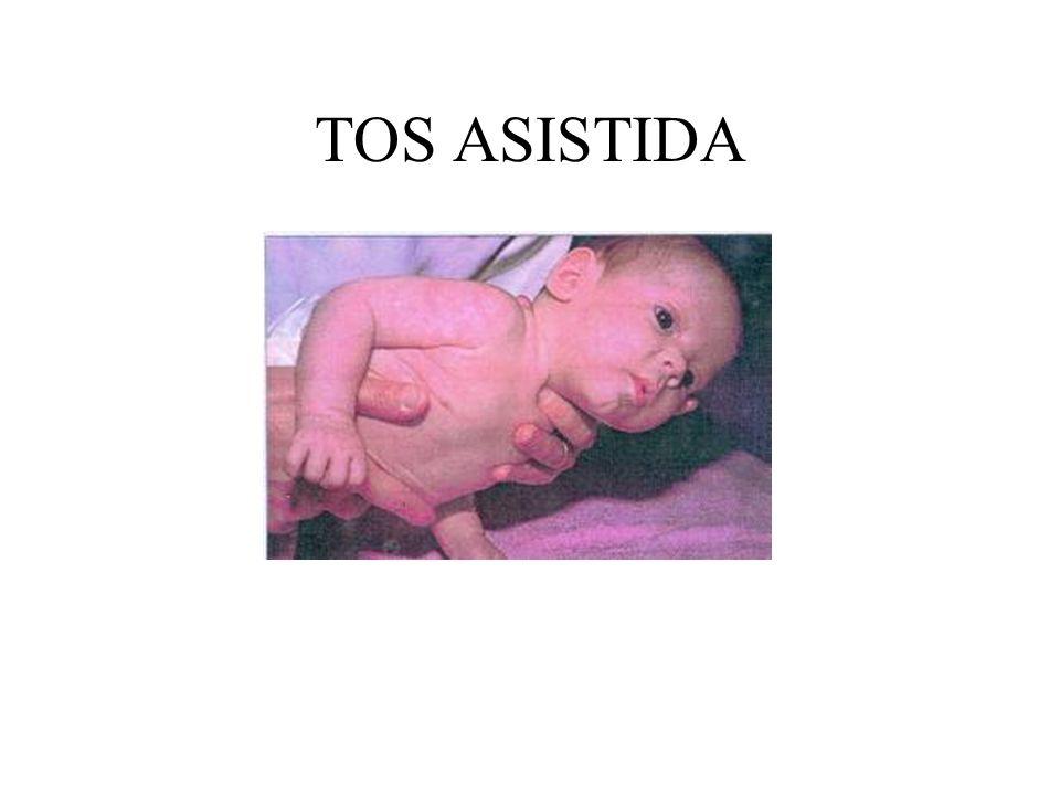 TOS ASISTIDA