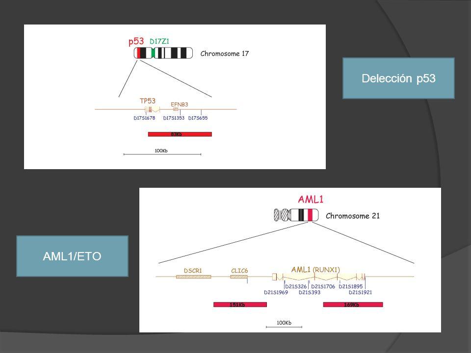 Delección p53 AML1/ETO 1º, LLC B