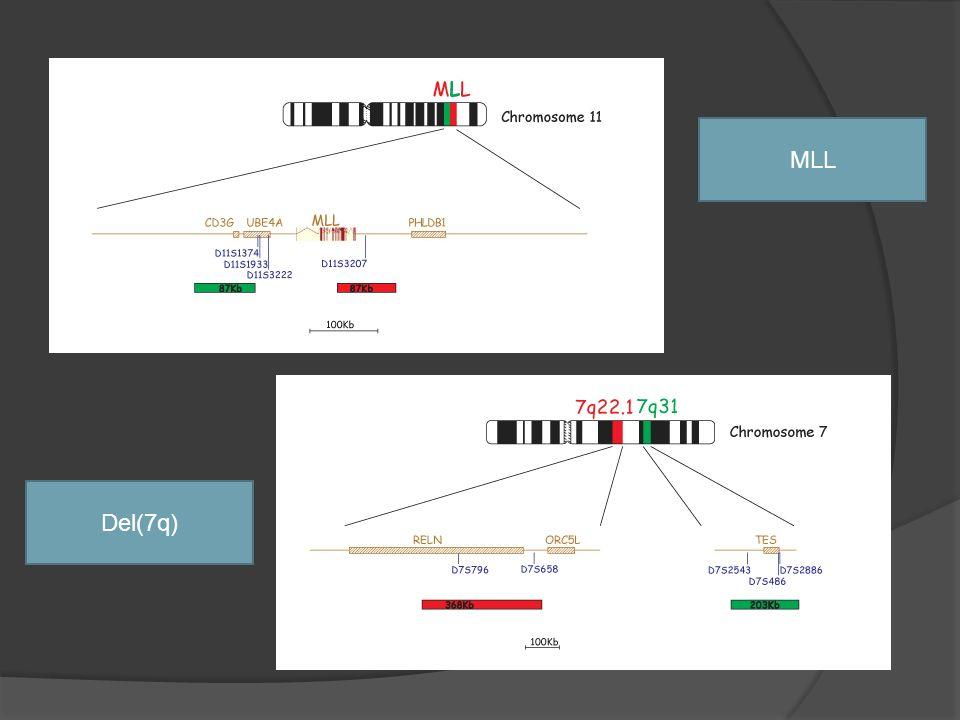 MLL Del(7q) 1º, 85% LAL-B infantiles. T(4;11)