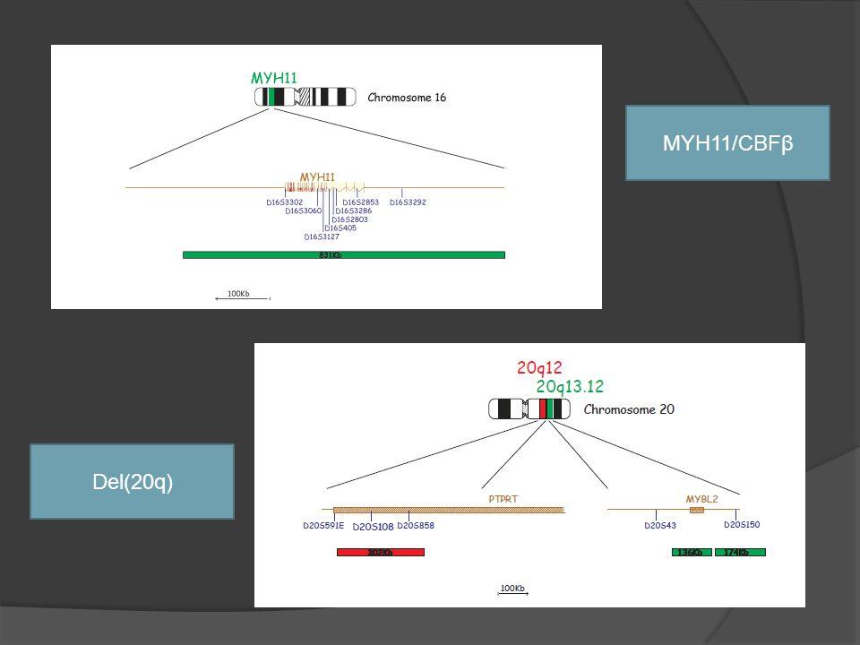 MYH11/CBFβ Del(20q) La 1ª, inv(16), en 20% de las M4