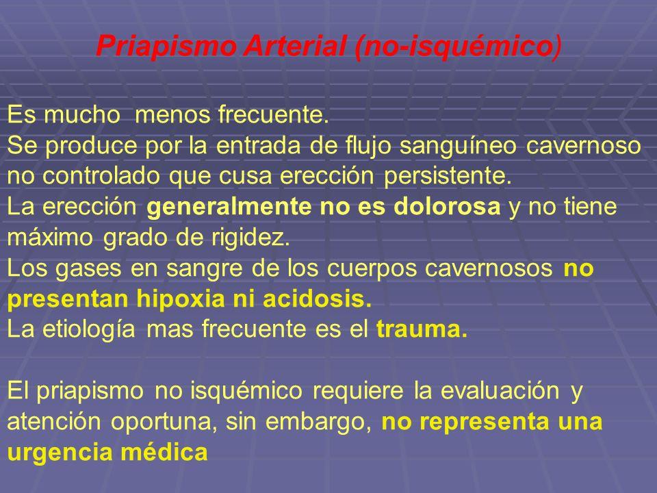 Priapismo Arterial (no-isquémico)