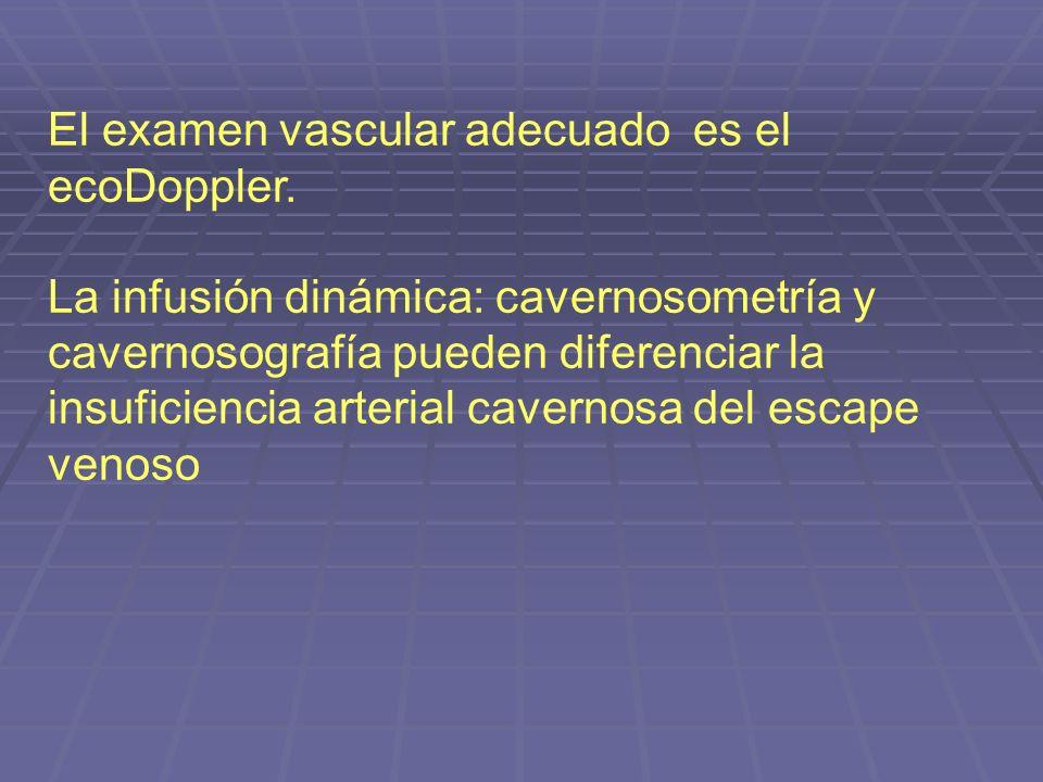 El examen vascular adecuado es el ecoDoppler.