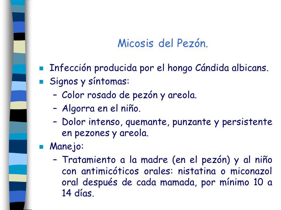 Micosis del Pezón. Infección producida por el hongo Cándida albicans.