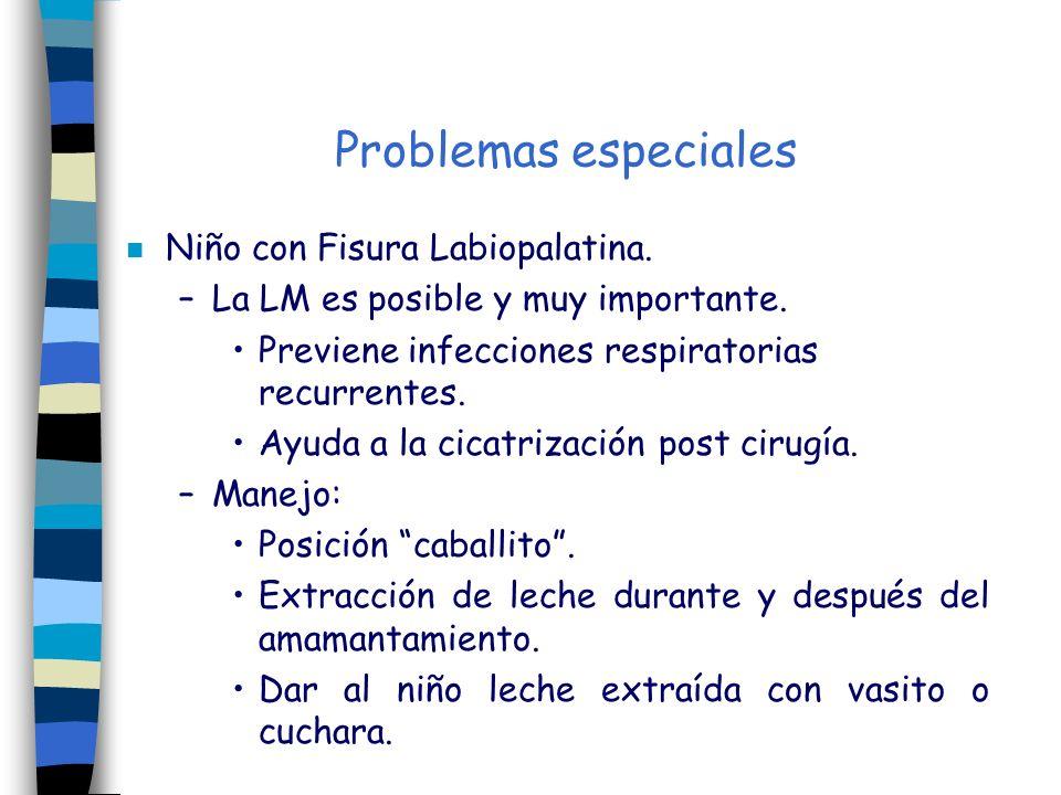 Problemas especiales Niño con Fisura Labiopalatina.