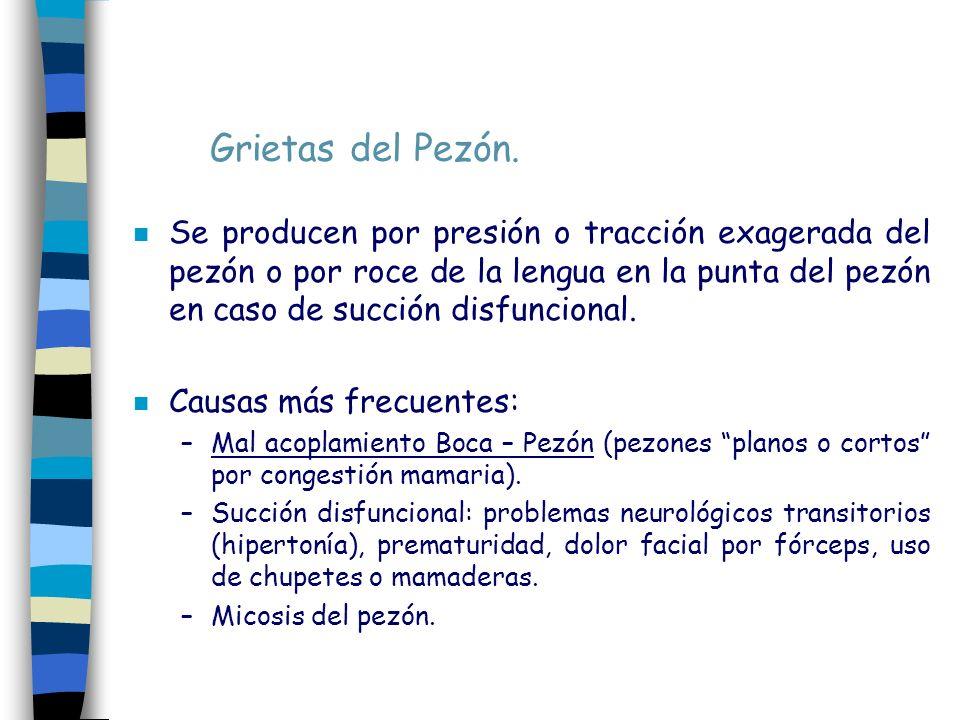 Grietas del Pezón.
