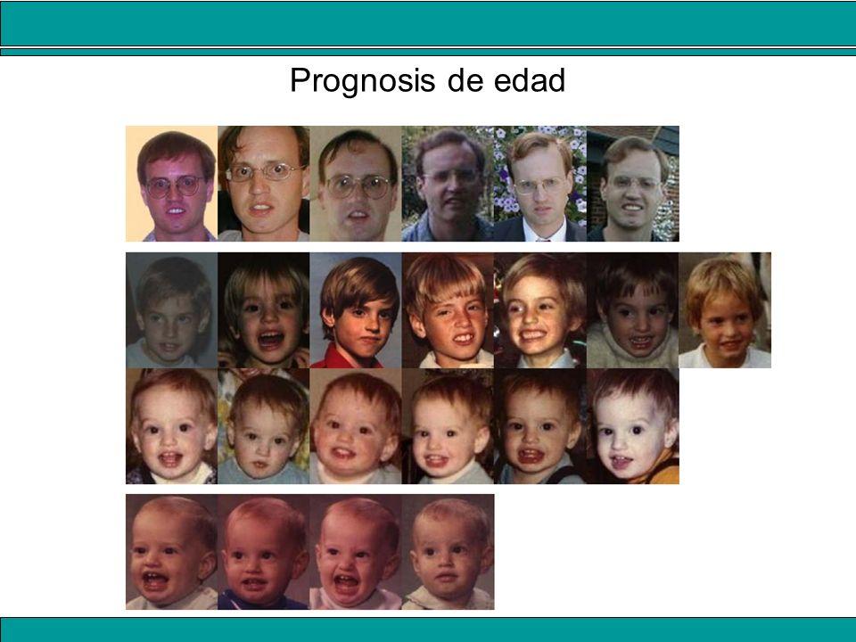 Prognosis de edad