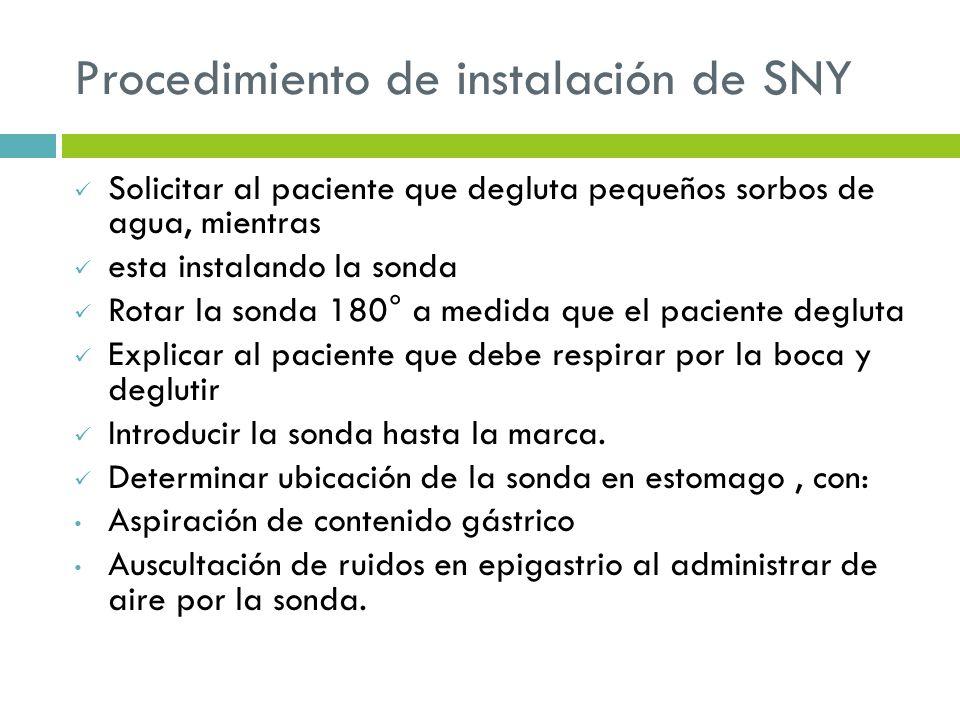 Procedimiento de instalación de SNY