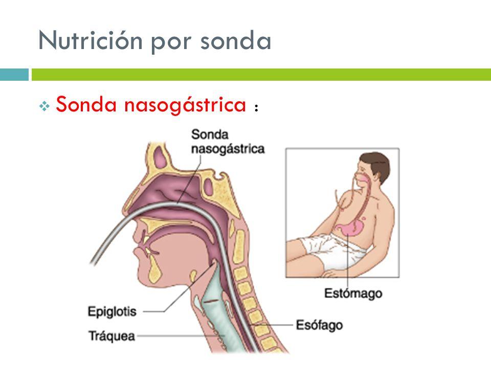 Nutrición por sonda Sonda nasogástrica :