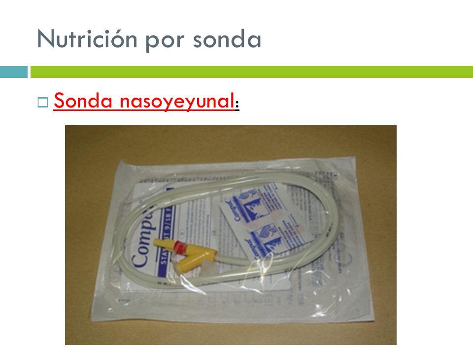 Nutrición por sonda Sonda nasoyeyunal: