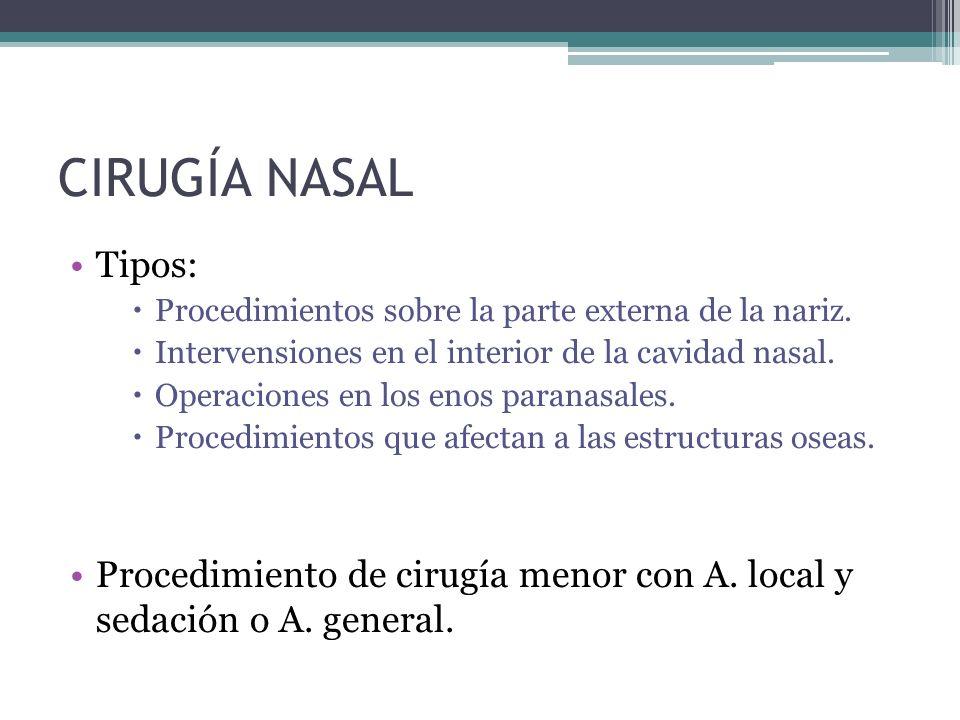 CIRUGÍA NASAL Tipos: Procedimientos sobre la parte externa de la nariz. Intervensiones en el interior de la cavidad nasal.