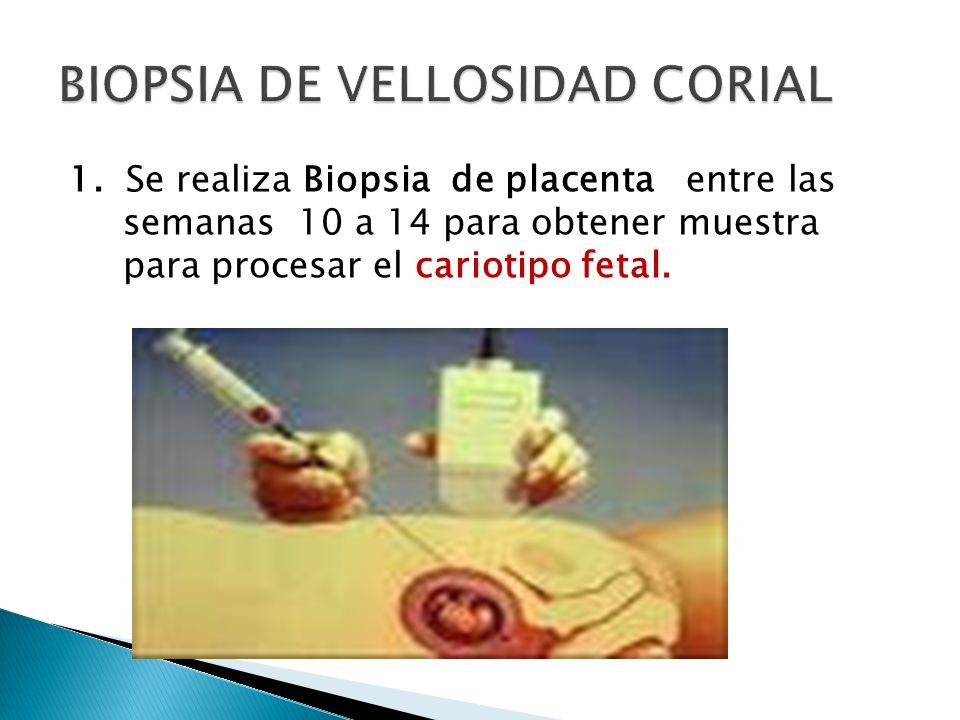 BIOPSIA DE VELLOSIDAD CORIAL
