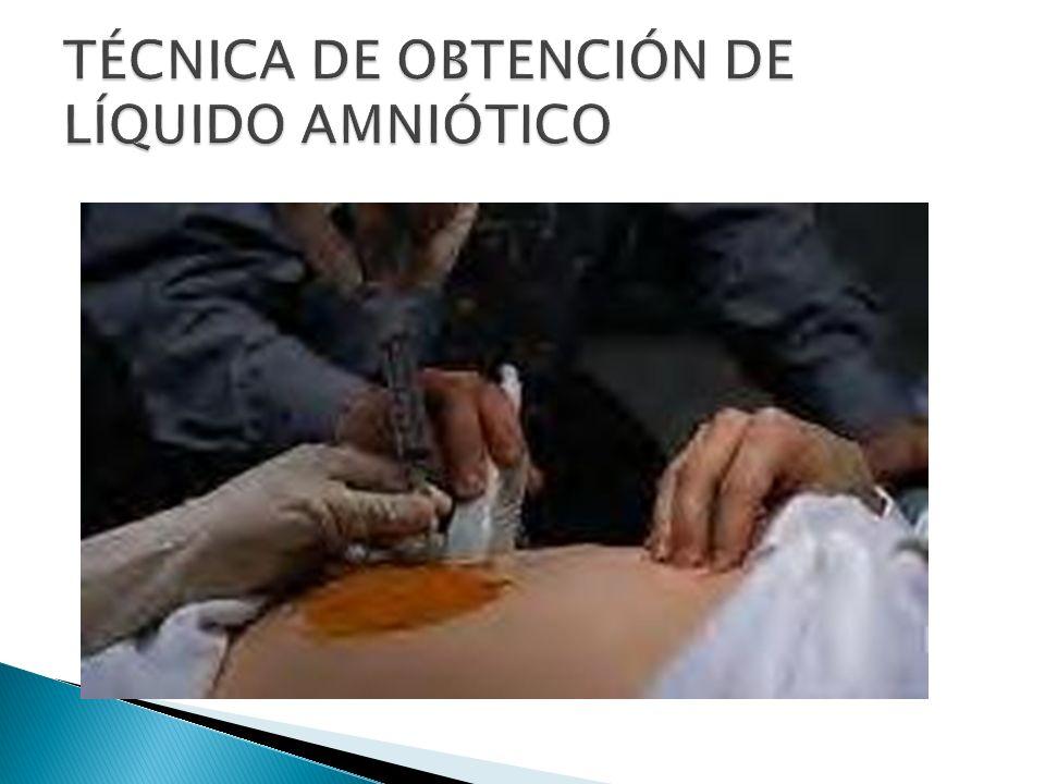 TÉCNICA DE OBTENCIÓN DE LÍQUIDO AMNIÓTICO
