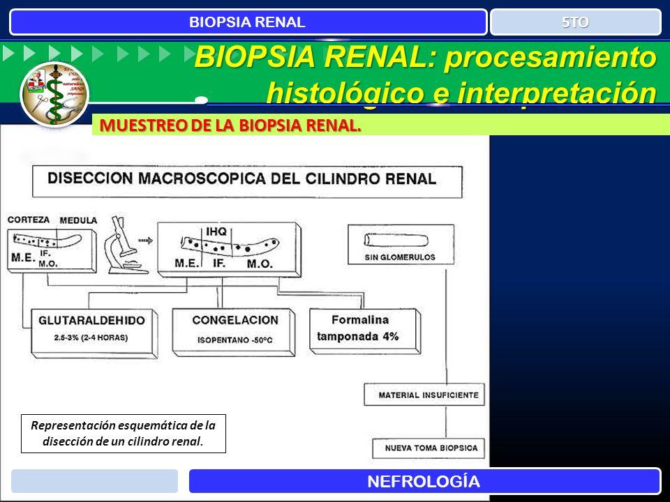 Representación esquemática de la disección de un cilindro renal.