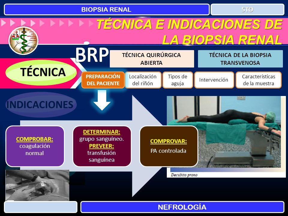 BRP TÉCNICA E INDICACIONES DE LA BIOPSIA RENAL TÉCNICA INDICACIONES