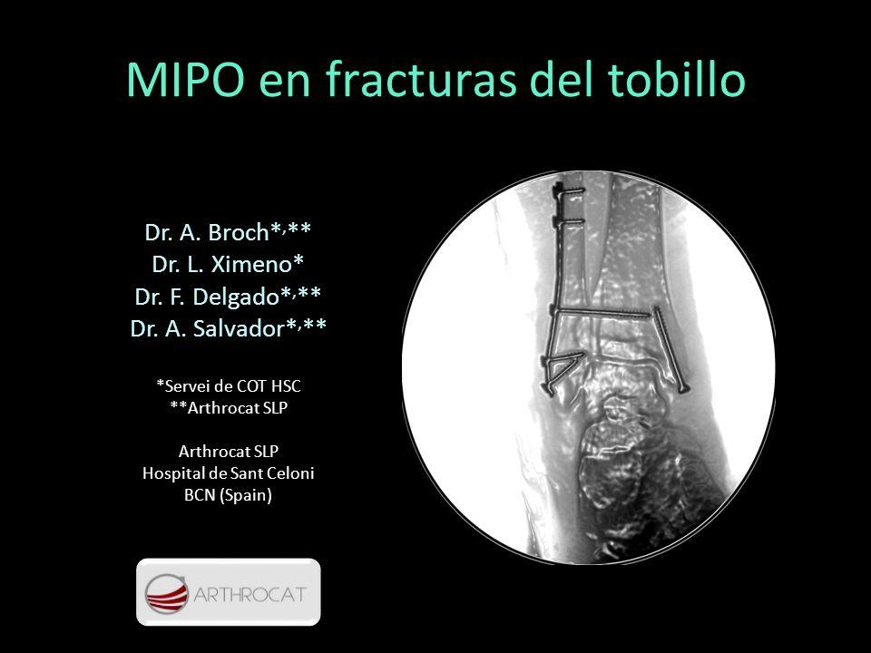MIPO en fracturas del tobillo