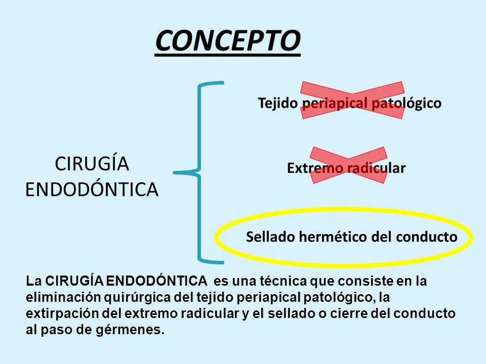 Tejido periapical patológico Sellado hermético del conducto