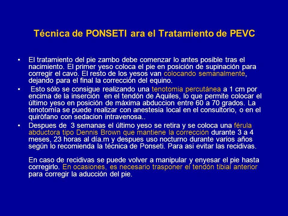 Técnica de PONSETI ara el Tratamiento de PEVC