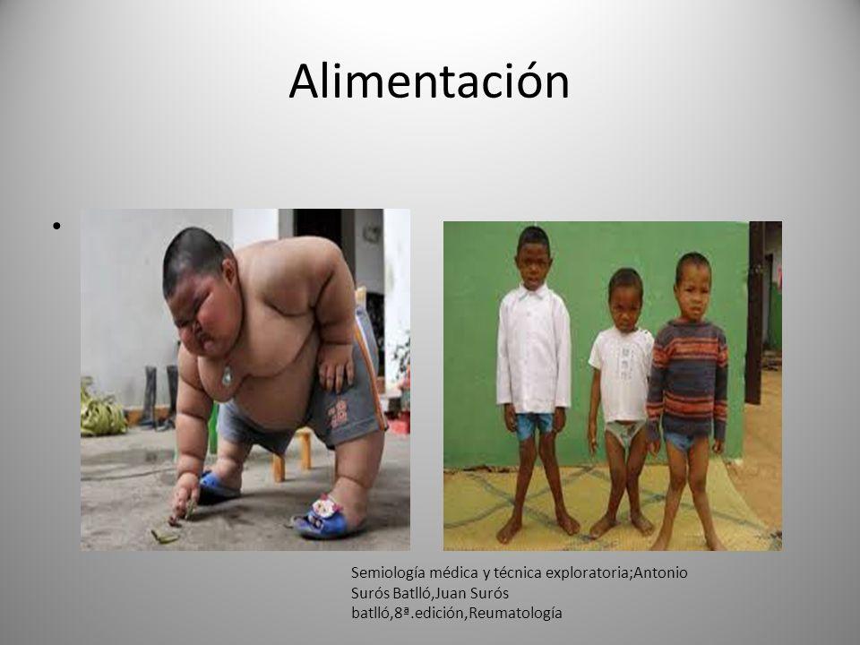Alimentación La alimentación defectuosa y la falta de sol favorecen la aparición del raquitismo en la infancia y de la osteomalacia en el adulto.