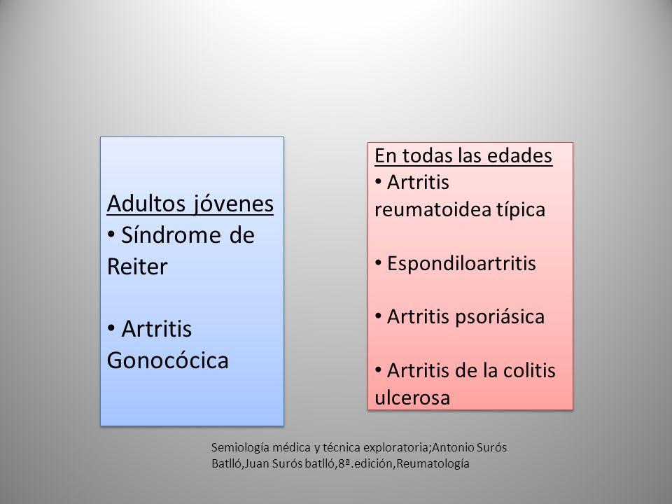 Adultos jóvenes Síndrome de Reiter Artritis Gonocócica