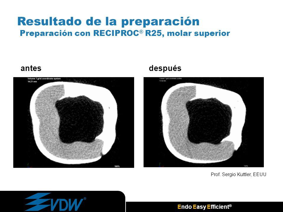 Resultado de la preparación Preparación con RECIPROC® R25, molar superior