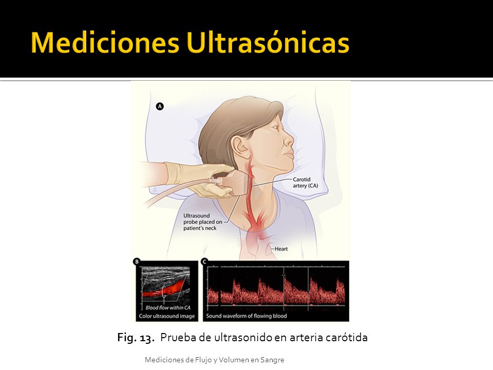 Mediciones Ultrasónicas