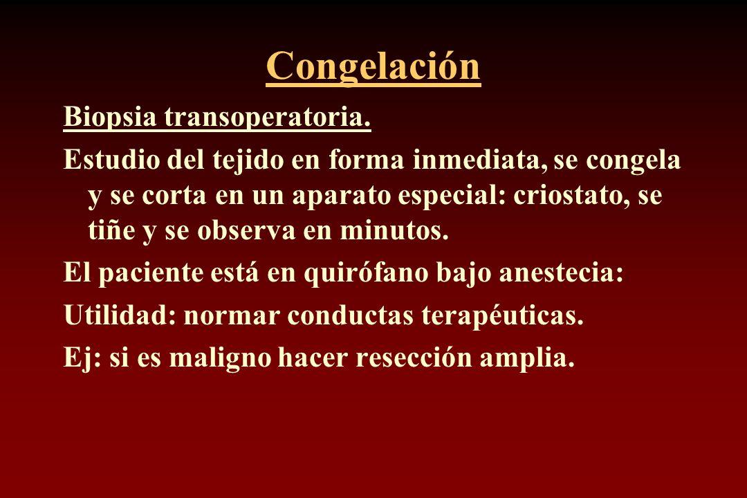 Congelación Biopsia transoperatoria.