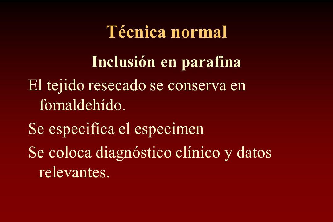 Técnica normal Inclusión en parafina