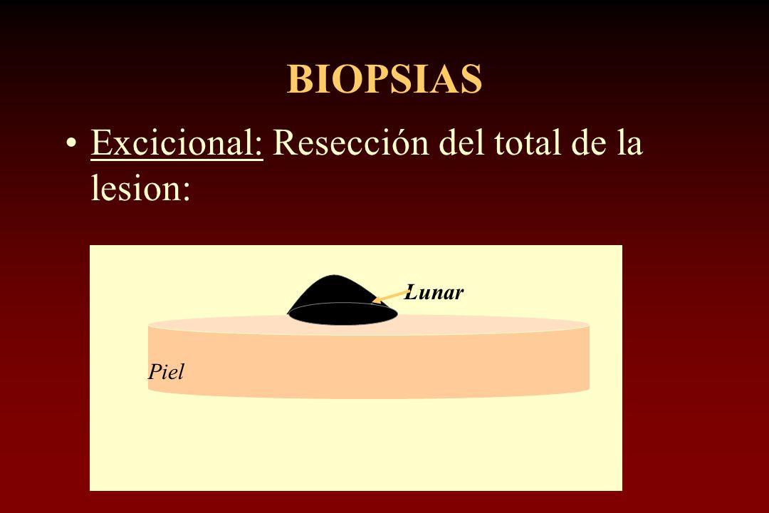 BIOPSIAS Excicional: Resección del total de la lesion: Lunar Piel