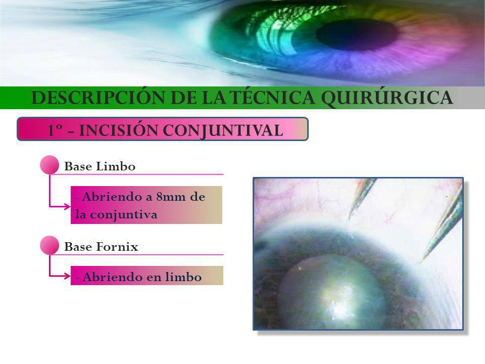 DESCRIPCIÓN DE LA TÉCNICA QUIRÚRGICA 1º - INCISIÓN CONJUNTIVAL