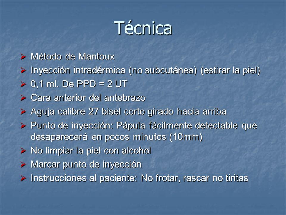 Técnica Método de Mantoux