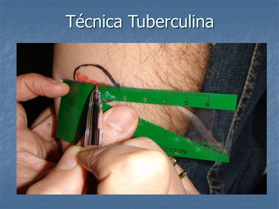 Técnica Tuberculina