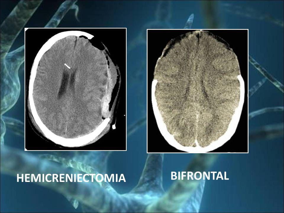 BIFRONTAL HEMICRENIECTOMIA