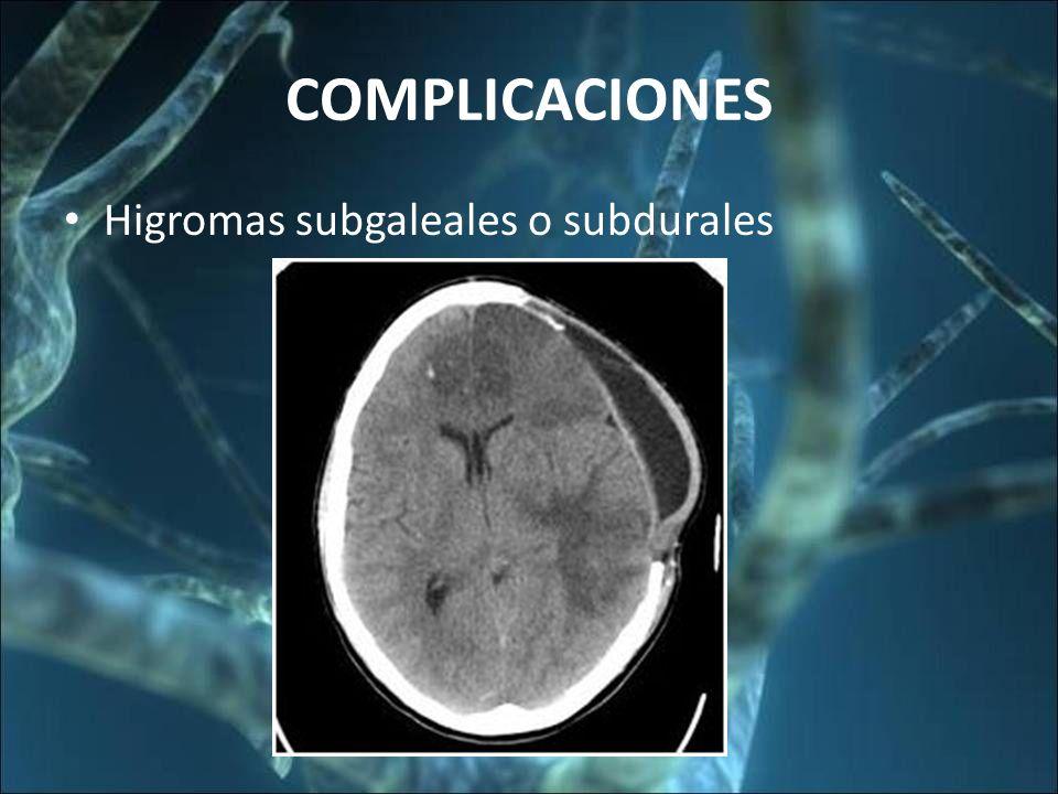 COMPLICACIONES Higromas subgaleales o subdurales