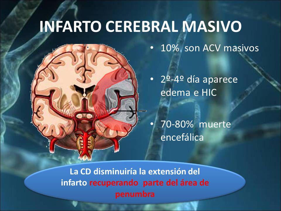 INFARTO CEREBRAL MASIVO