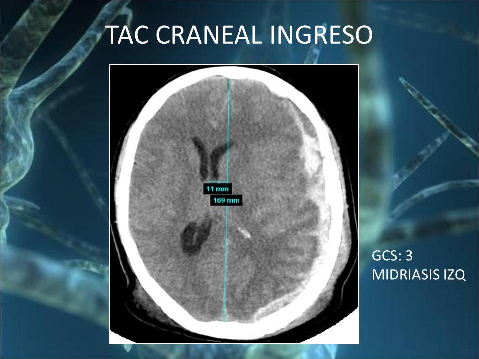 TAC CRANEAL INGRESO GCS: 3 MIDRIASIS IZQ