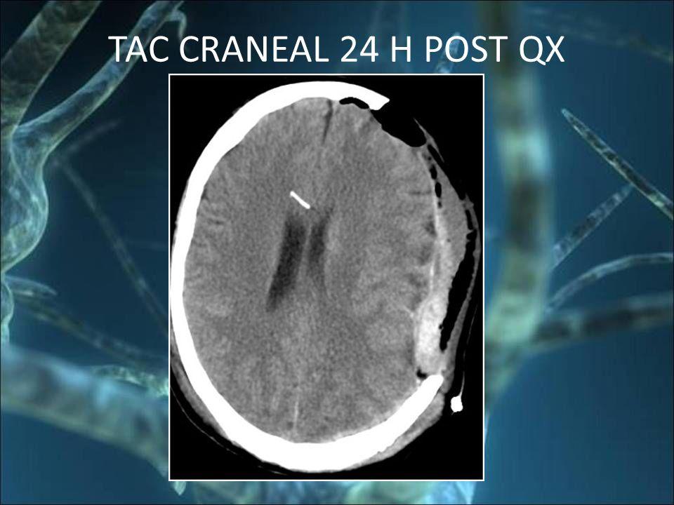 TAC CRANEAL 24 H POST QX