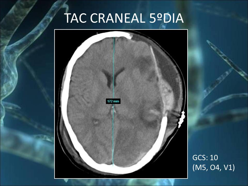 TAC CRANEAL 5ºDIA GCS: 10 (M5, O4, V1)