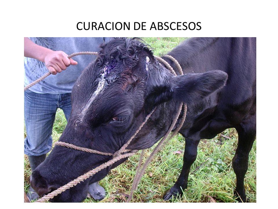 CURACION DE ABSCESOS