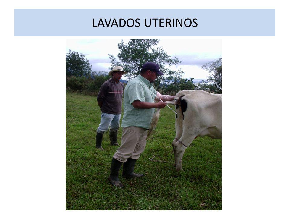 LAVADOS UTERINOS