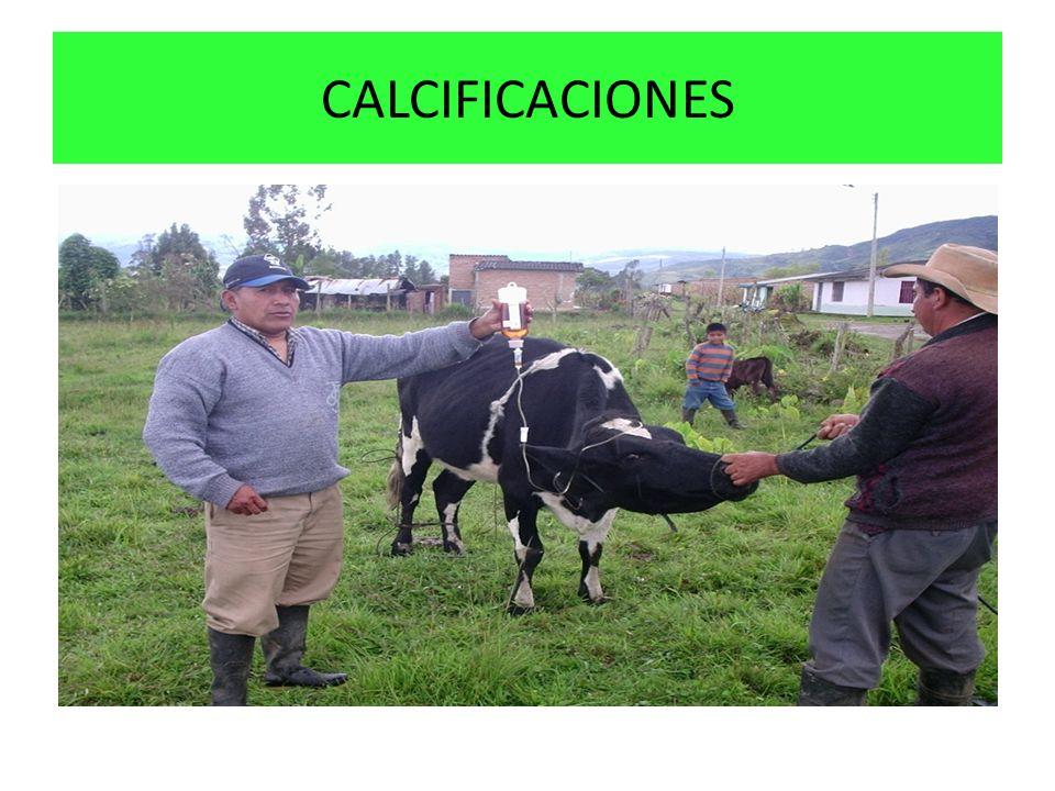CALCIFICACIONES
