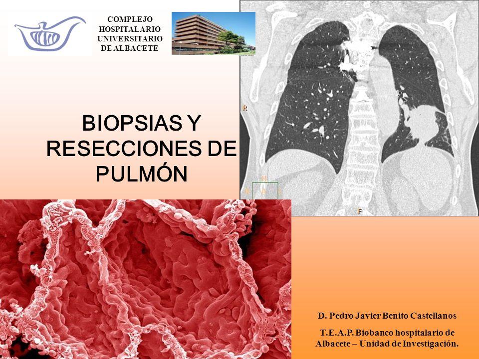 BIOPSIAS Y RESECCIONES DE PULMÓN