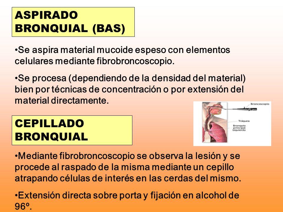 ASPIRADO BRONQUIAL (BAS)