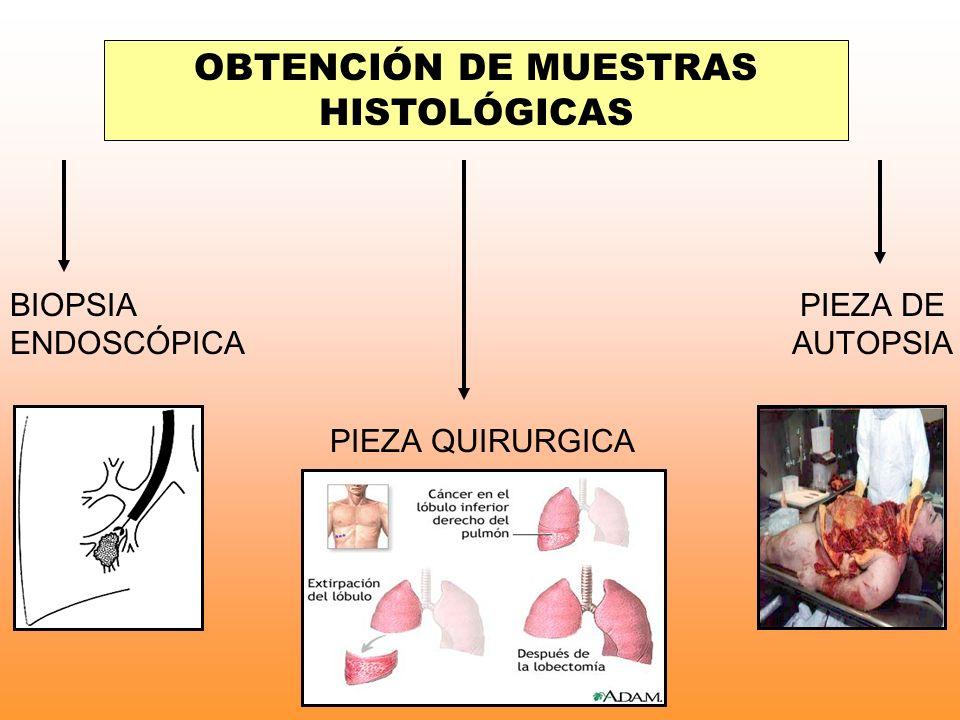 OBTENCIÓN DE MUESTRAS HISTOLÓGICAS
