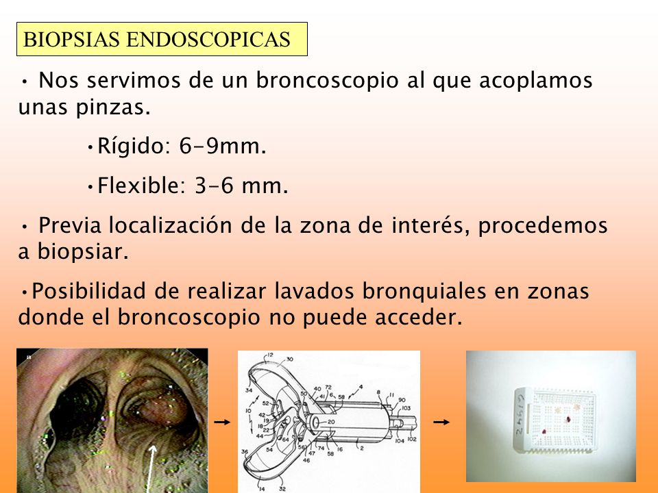 BIOPSIAS ENDOSCOPICAS