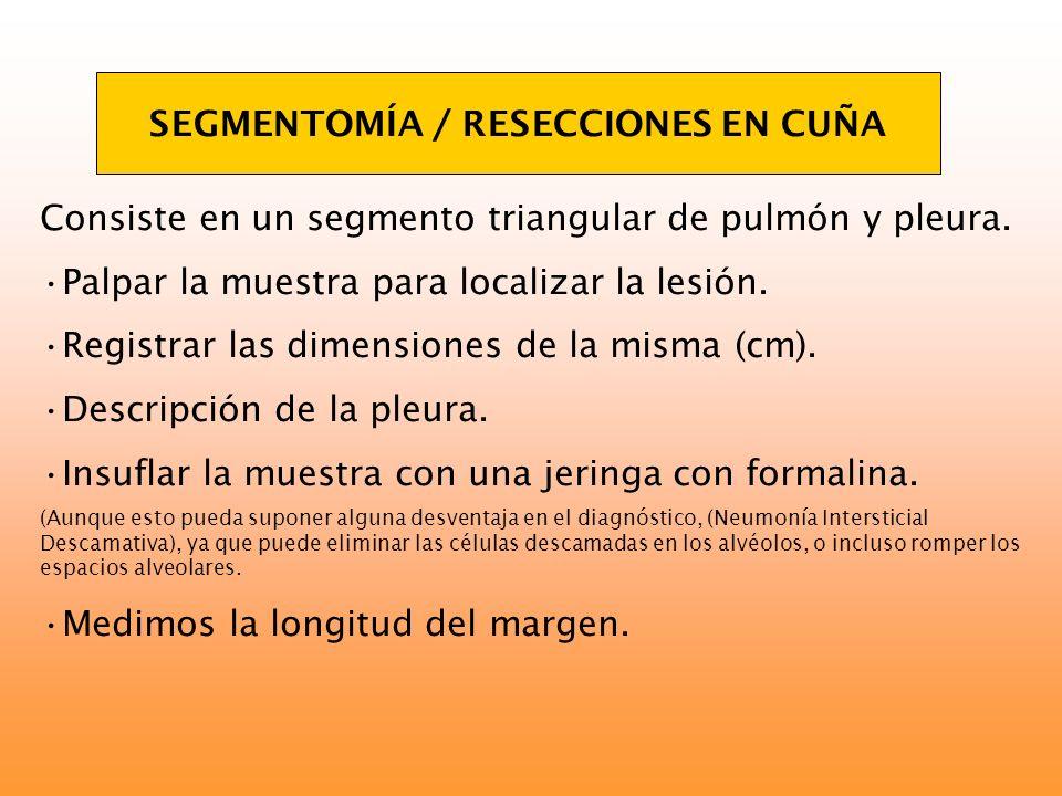 SEGMENTOMÍA / RESECCIONES EN CUÑA