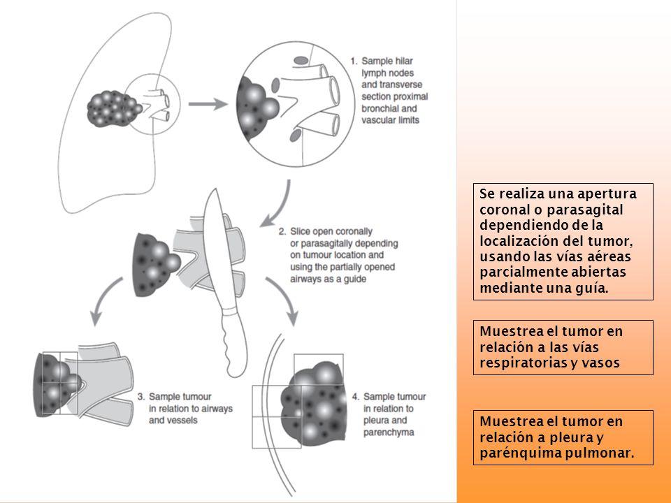 Se realiza una apertura coronal o parasagital dependiendo de la localización del tumor, usando las vías aéreas parcialmente abiertas mediante una guía.