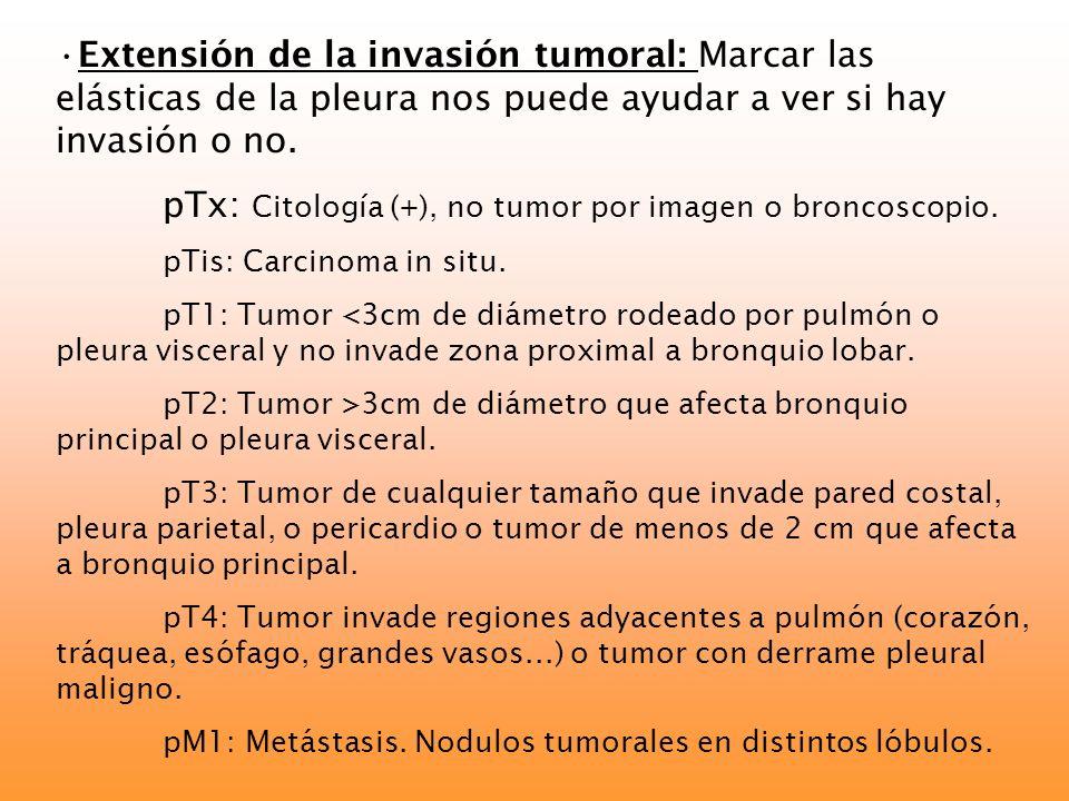 pTx: Citología (+), no tumor por imagen o broncoscopio.