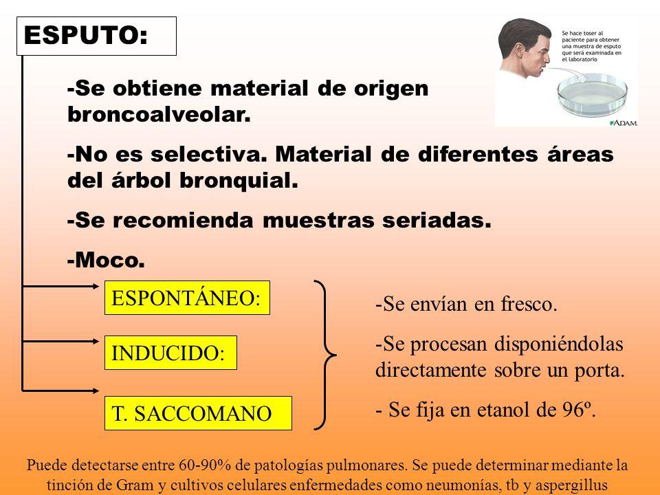 ESPUTO: Se obtiene material de origen broncoalveolar.